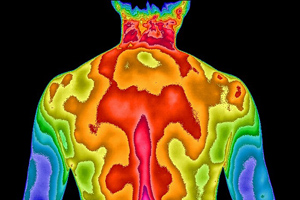 Thermogram of back